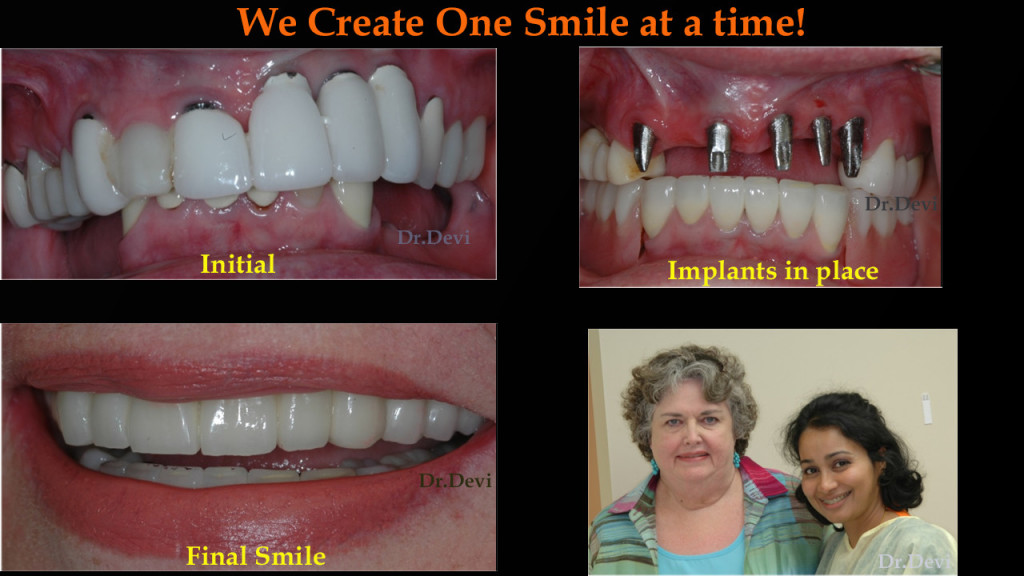 implant supported dentures scottsdale