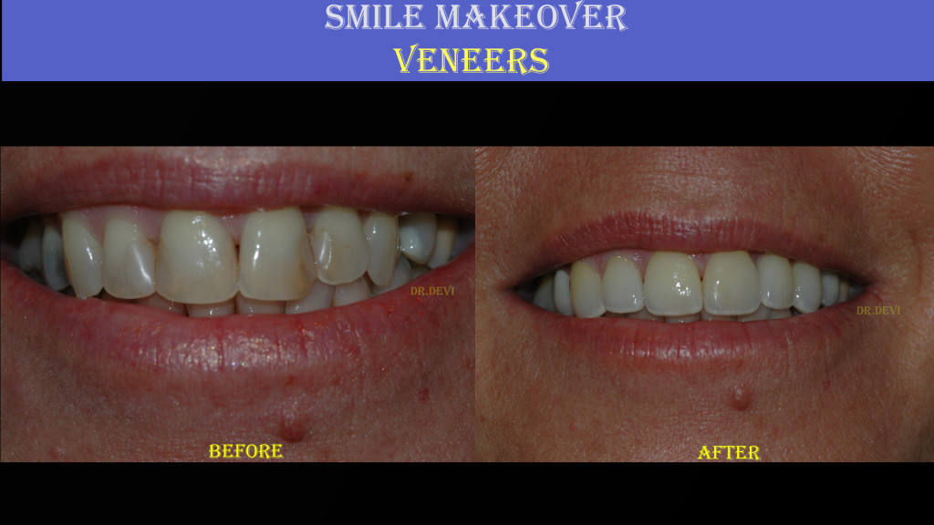 Smile Makeover - Veneers