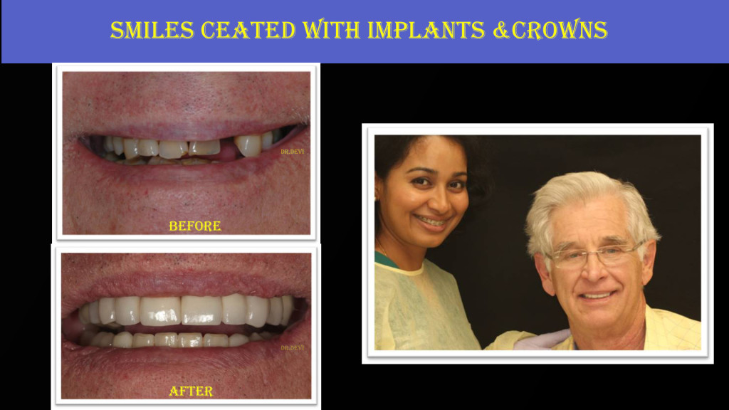 Smiles Created with Implants & Crowns