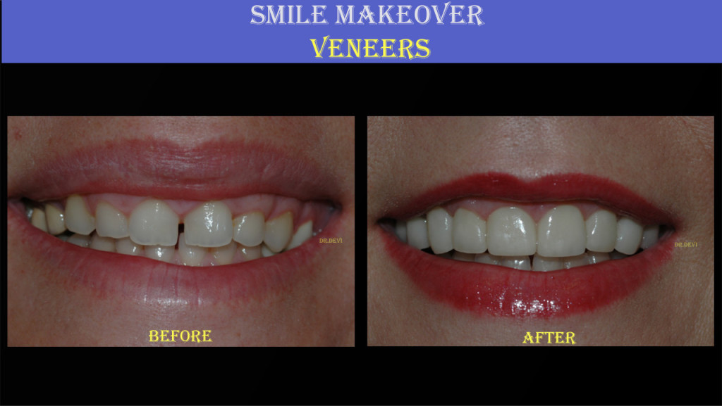 Smile Makeover – Veneers